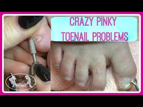 Crazy Pinky Toenails Pedicure Tutorial + Giveaway Opportunity!
