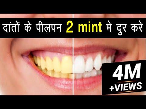 सिर्फ 2 मिनटों में पीले दांतों को मोती की तरह चमका देगा ये सबसे अद्भुत घरेलु नुस्खा |Teeth Whiten
