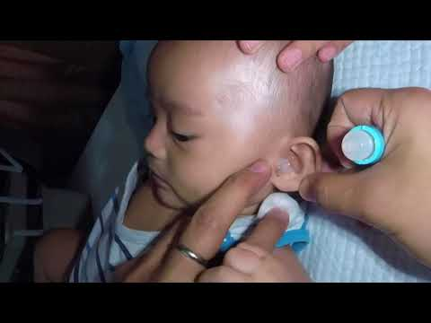 Cute 3 Month Old Baby Boy's Earwax Removal