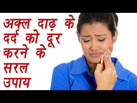 Wisdom Teeth pain treatment with Home remedies |अक्ल दाढ़ का दर्द ऐसे करें दूर | Boldsky