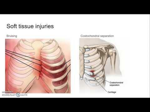 Fractured Rib