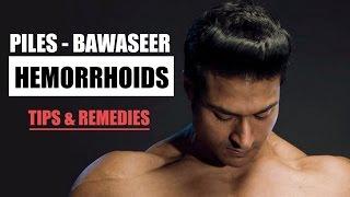 How To Cure Hemorrhoids Piles Tips Remedies By Guru Mann