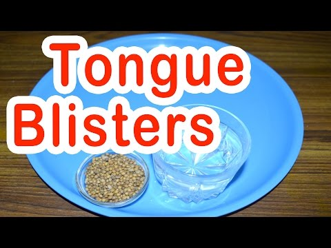 Home Remedy for Tongue Blisters