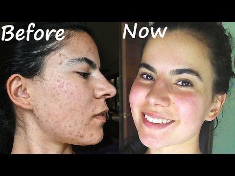How I got rid of acne NATURALLY