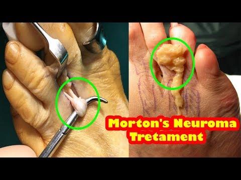 morton's neuroma - What is it, symptoms, treatment, exercises, surgery - how to treat morton's neuro
