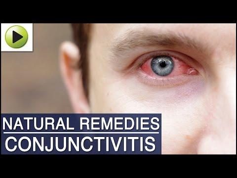 Conjunctivitis (Pink Eye) - Natural Ayurvedic Home Remedies