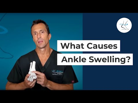 What causes Ankle Swelling? - Houston Foot and Ankle Surgeon - Dr Robert J Moore III Blog