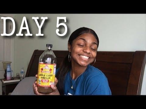 28 DAYS OF VLOGS: DAY 5 | APPLE CIDER VINEGAR BATH REVIEW