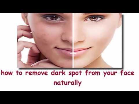 Remove Dark Spots On Face Caused By Pimples Naturally