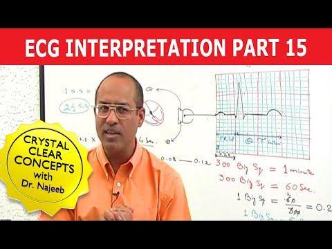 EKG or ECG Interpretation - Part 15/20