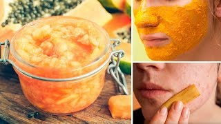 3 Best Ever Homemade Natural Face Masks For Acne, Wrinkles and Bright Skin