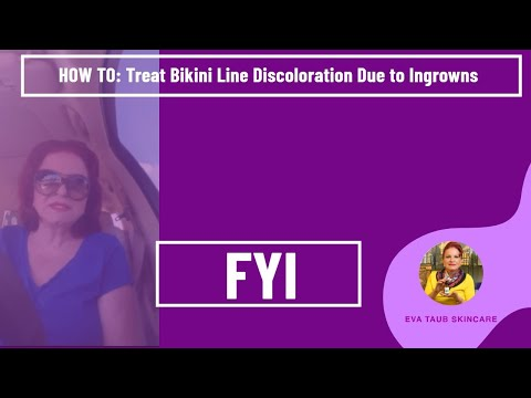 How to Treat Bikini Line Discoloration Due to Ingrowns