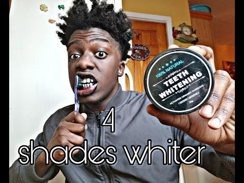 How to get white teeth quick 2018|Braces journey of 1