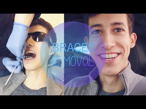 GETTING MY BRACES REMOVED! | VLOG