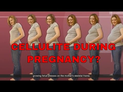 How Do I Avoid Gaining Cellulite While Pregnant? | Get Rid of Stretch Marks During Pregnancy