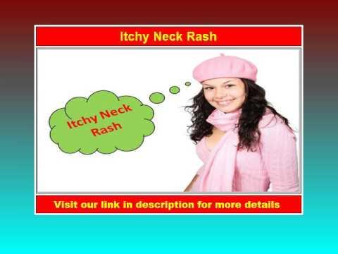 Itchy Neck Rash - Watch Now!