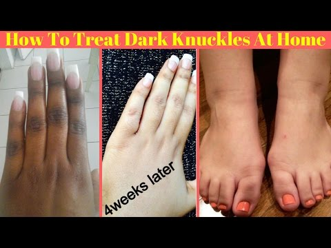 How To Get Rid Of Dark Knuckles Easily At Home | Get Fair Hands And Feet | Home Remedies