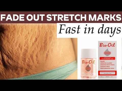 GET RID OF STRETCH MARKS FAST WITH BIO OIL..