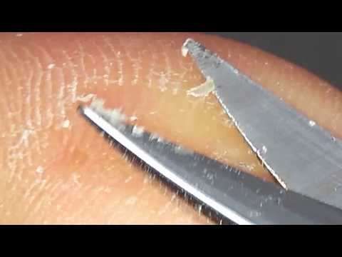 How to remove callus (Hard foot skin)#4