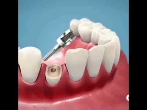 Tooth Removal - Dr. Sarabjeet Singh   Chandigarh Orthodontics