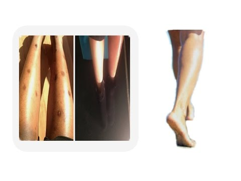 HOW TO GET RID OF Dark Spot On legs - For Those who Still Struggle With this