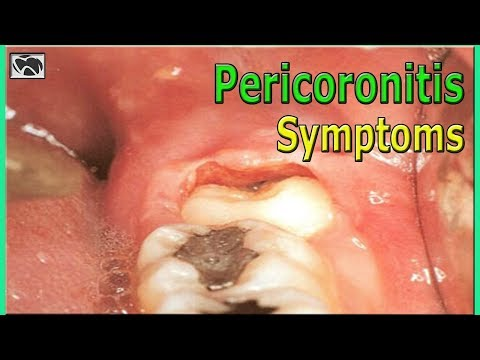 What is Pericoronitis? Causes and Symptoms | Wisdom Teeth