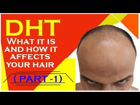 DHT CAUSES HAIR FALL | HOW AND WHY? | HAIR TRANSPLANT IN INDIA (2018)|