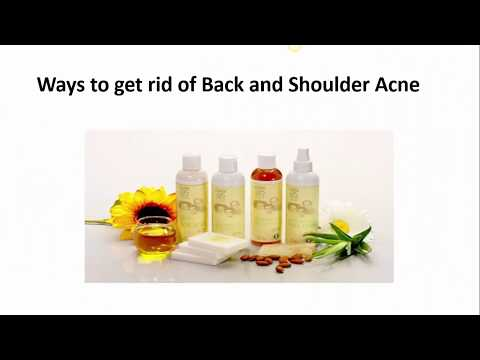 How to Get Rid of Shoulder and Back Acne