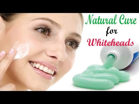 How To Get Rid Of Whitehead | Natural Whitehead Treatment