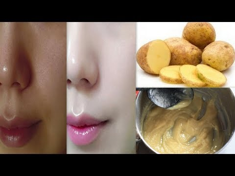 आलू से कैसे करे फैशियल - How to Do Potato Facial To Get Instant Glowing Skin - Skin Whitening Facial