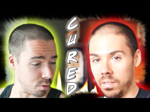 How I Reversed Male Pattern Baldness Naturally With Diet, Herbs and Herbal Shampoo