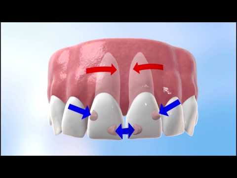 Discover how Invisalign works