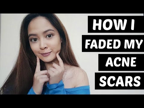 HOW I FADED MY ACNE SCARS | Tish Ortz