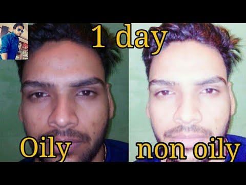 how to remove oily skin Home Remedies for Oily Skin oily skincare tips