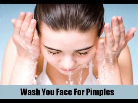 8 Ways To Prevent Pimples