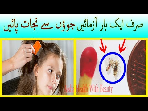 HOW TO GET RID OF HEAD LICE & Nits Fast NATURALLY – Juon or Likho Ka Khatma