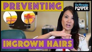 Preventing Ingrown Hairs