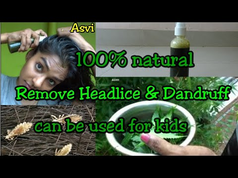 How to remove head lice & dandruff|💯%natural home remedy|can be used for kids|100% effective|Asvi