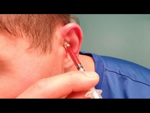 How to prevent cauliflower ear