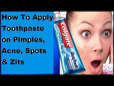 How To Apply Toothpaste on Pimples, Acne, Spots & Zits