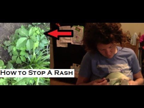 How to get rid of poison ivy rash FOREVER!!