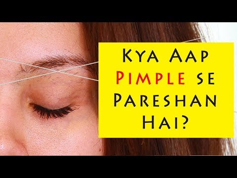 NO More Pimple / Rashes AFTER THREADING ||Post Threading Skincare||