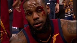 LeBron gets hit in the face and bleeds!