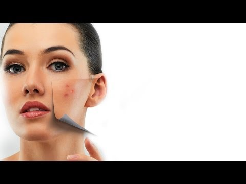 How To Treat Acne Scars - Expert Advice - Post Acne Skin Care - Glamrs
