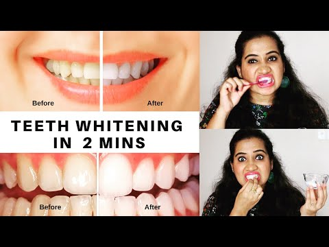 How To Whiten Teeth at Home in 2 Minutes | Happy Pink Studio