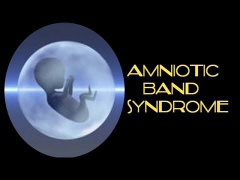 Amniotic Band Syndrome