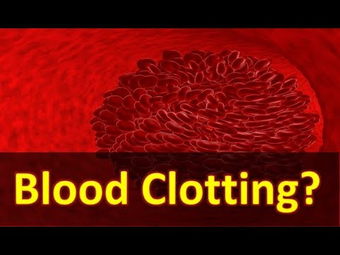How to Prevent Blood Clotting - Blood Clotting in Brain and Legs - Guide and Treatment