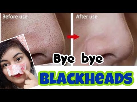 Remove Blackheads/Whiteheads Naturally - Demo | JSuper Kaur