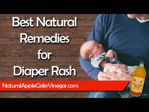 5 Natural Diaper Rash Home Remedies that Actually Work