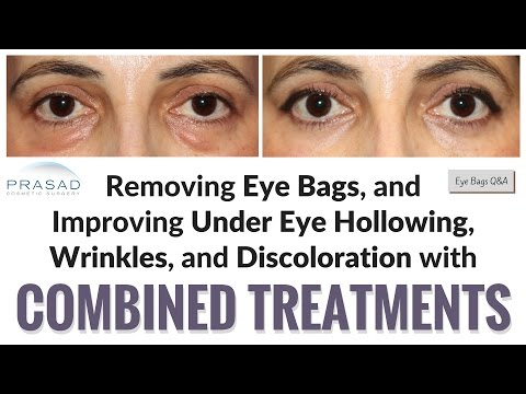 Why Puffy Eye Bags can also Cause Adjacent Hollowing Under Eyes, and Treating Both Issues